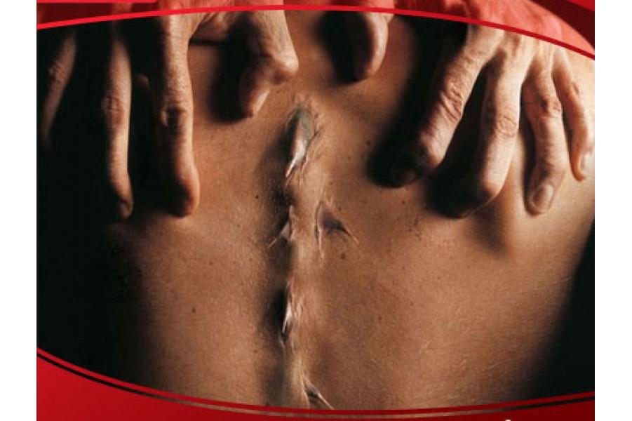 Bệnh gai cột sống và phương pháp điều trị tận gốc