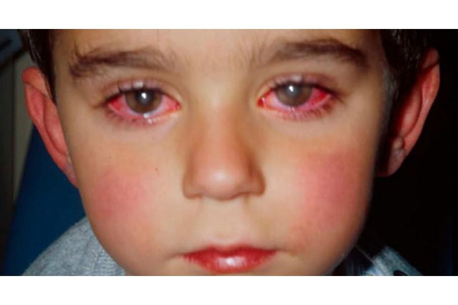 Cách chữa mắt nhìn một hóa hai