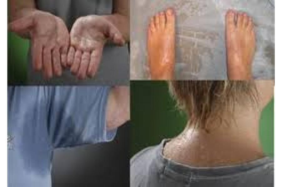 Chữa bệnh đổ mồ hôi tay chân
