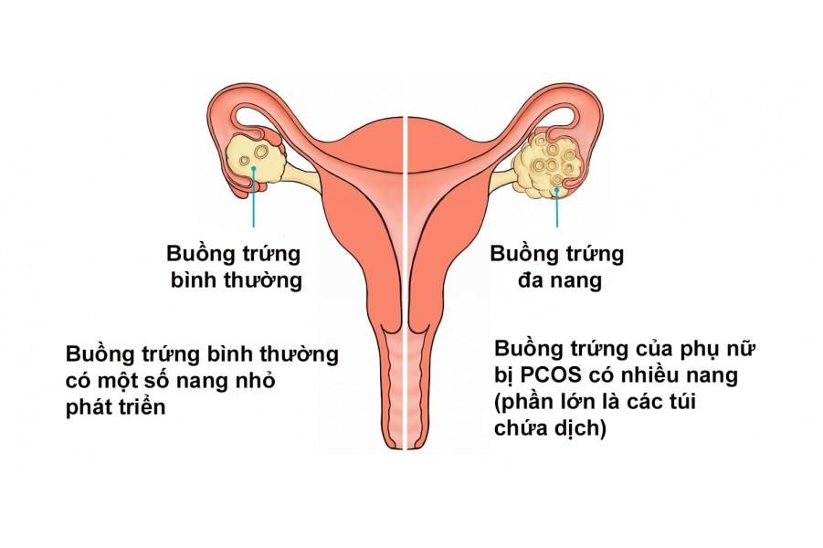 Chữa bệnh Đa nang, u nang buồng trứng và vô sinh nữ