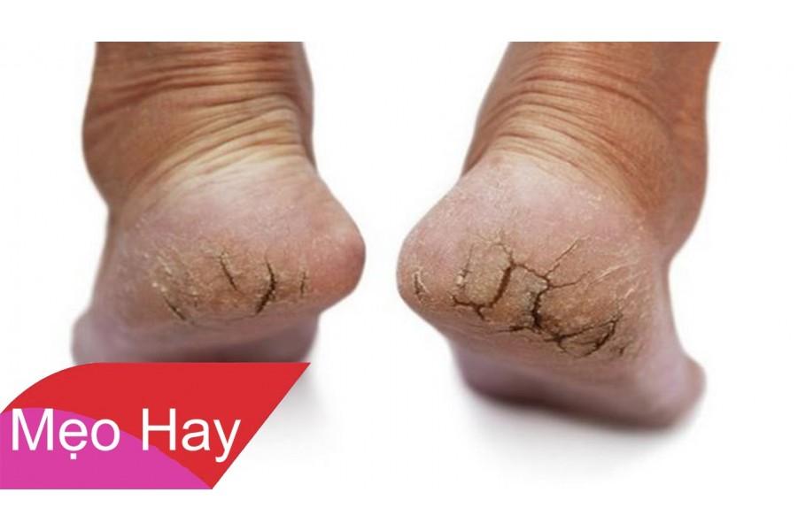 Cách điều trị nứt nẻ gót chân đơn giản tại nhà mà hiệu quả khó ai ngờ
