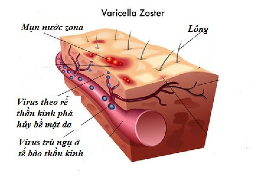 Tìm Hiểu Về Virus Gây Bệnh Thủy Đậu Và Zona Thần Kinh